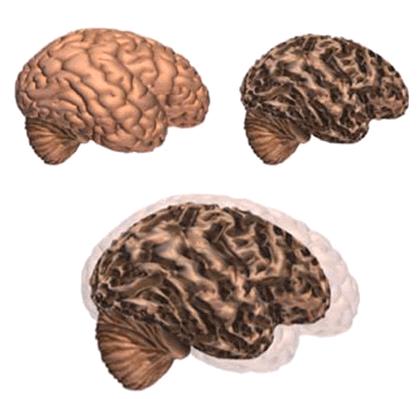 Brain changes, figure 1