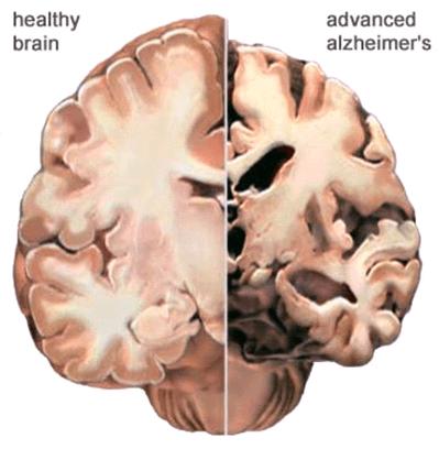 Brain changes, figure 2